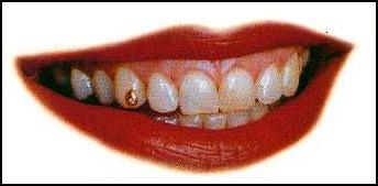 tandsmykke